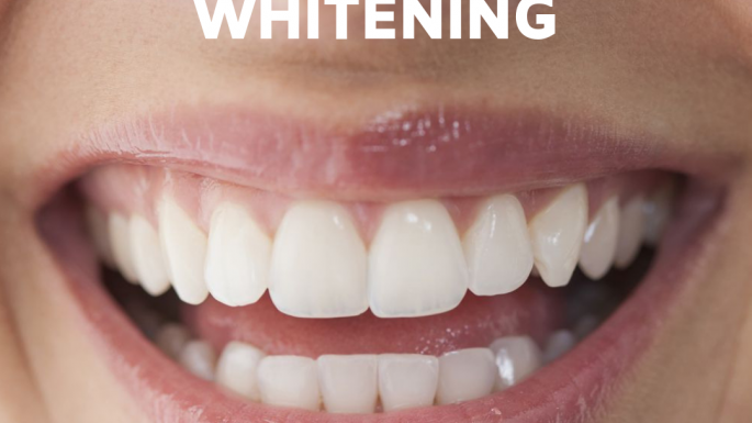 Why whiten your teeth?